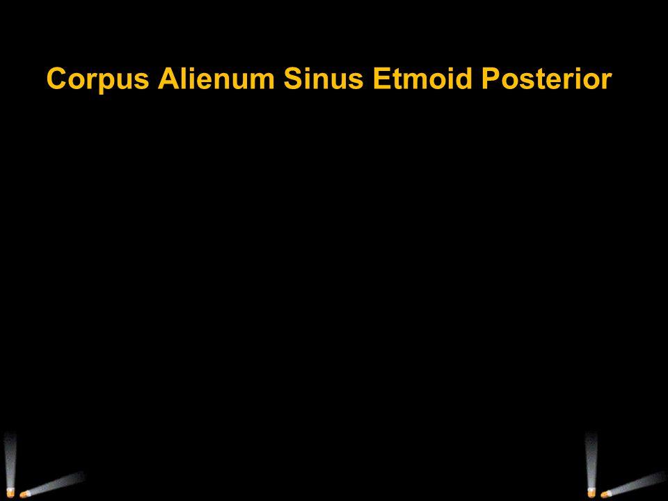 Corpus Alienum Sinus Etmoid Posterior