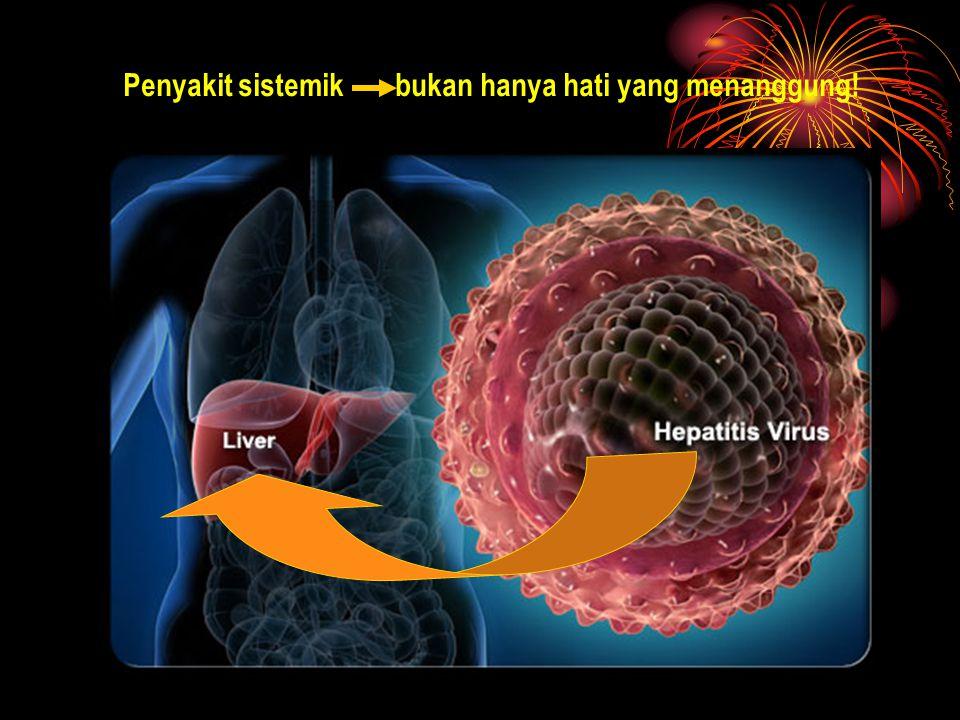 (Sulaiman A, Selayang pandang Hepatitis C, 2004) INFEKSI HCV GLOBAL: Fenomena Gunung Es.