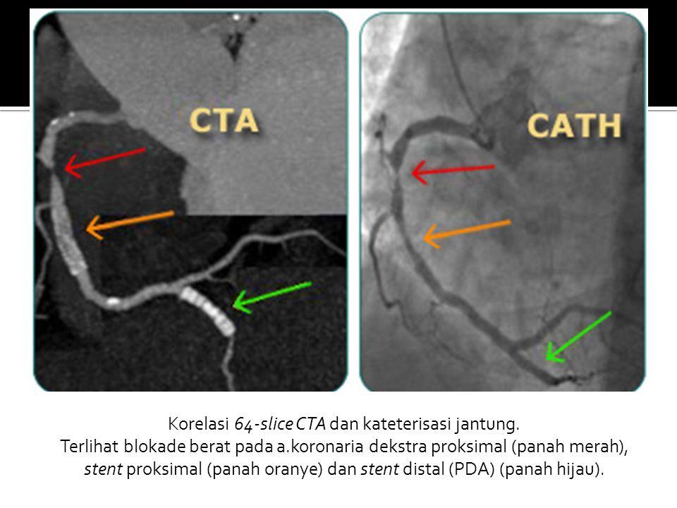 Korelasi 64-slice CTA dan kateterisasi jantung. Terlihat blokade berat pada a.koronaria dekstra proksimal (panah merah), stent proksimal (panah oranye