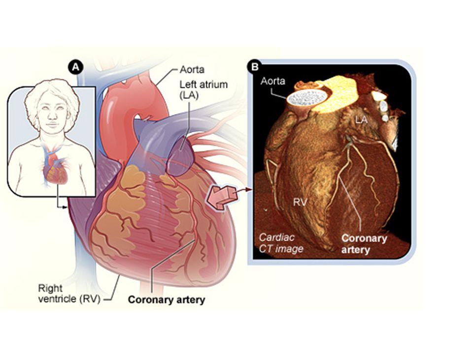 Volume-rendered CT image (gambar berwarna) memperlihatkan anatomi koroner dan stenosis proksimal LAD (panah).