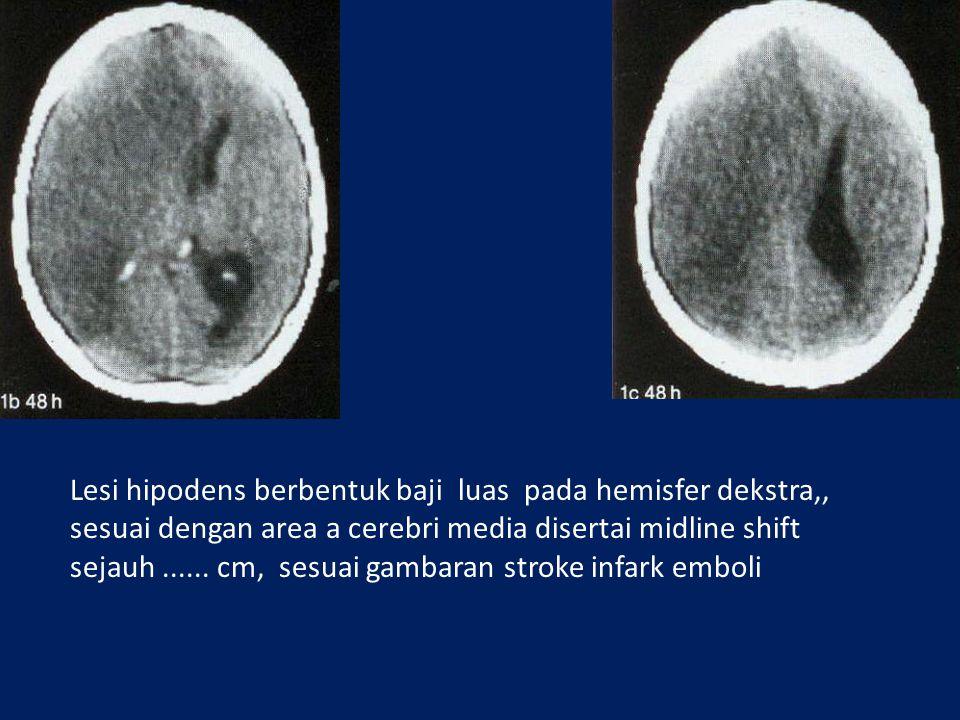 Lesi hipodens berbentuk baji luas pada hemisfer dekstra,, sesuai dengan area a cerebri media disertai midline shift sejauh...... cm, sesuai gambaran s