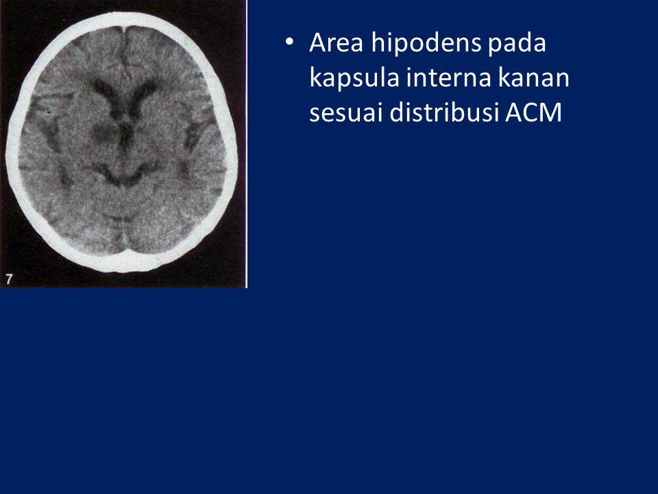 Quiz Subacute cerebral infarct lobus temporal kiri Chronic cerebral infarct pada lobus frontal kanan, temporooksipit al kiri, hemisfer serebellum kiri
