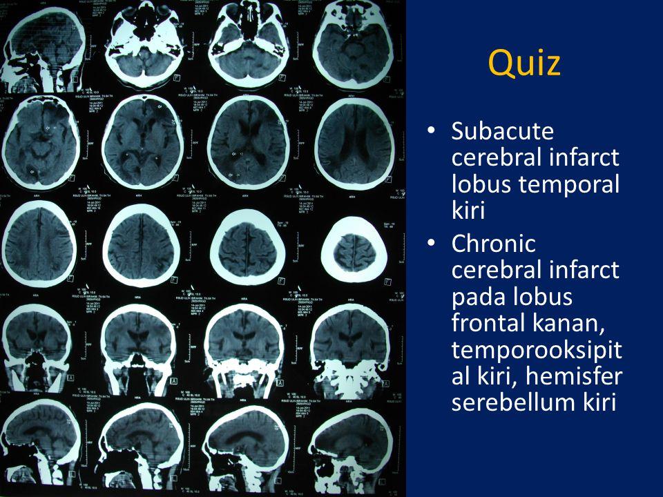 CT SCAN KEPALA PADA PERDARAHAN INTRASEREBRAL Darah pada CT scan terlihat sebagai area hiperdense dengan densitas 55-99 HU Terdapat efek massa, biasanya ada pendorongan, midline shift, atau kompresi ventrikel