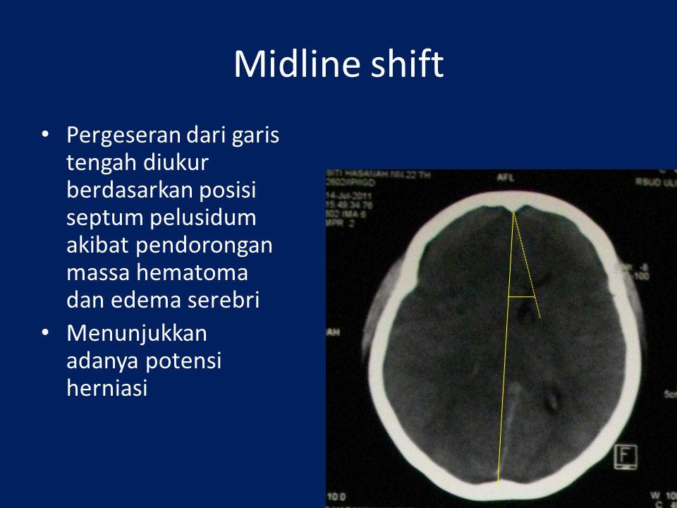 Midline shift Pergeseran dari garis tengah diukur berdasarkan posisi septum pelusidum akibat pendorongan massa hematoma dan edema serebri Menunjukkan adanya potensi herniasi