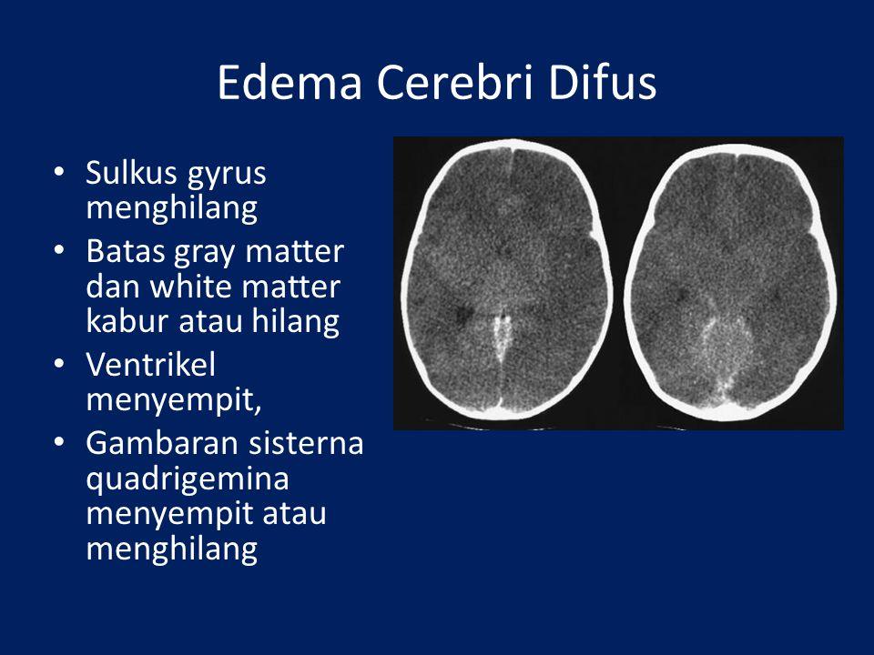 Hidrosefalus Ukuran ventrikel melebar Ujung tumpul Bila terdapat area hipodens pada kornu ventrikel lateralis menunjukkan proses sedang akut