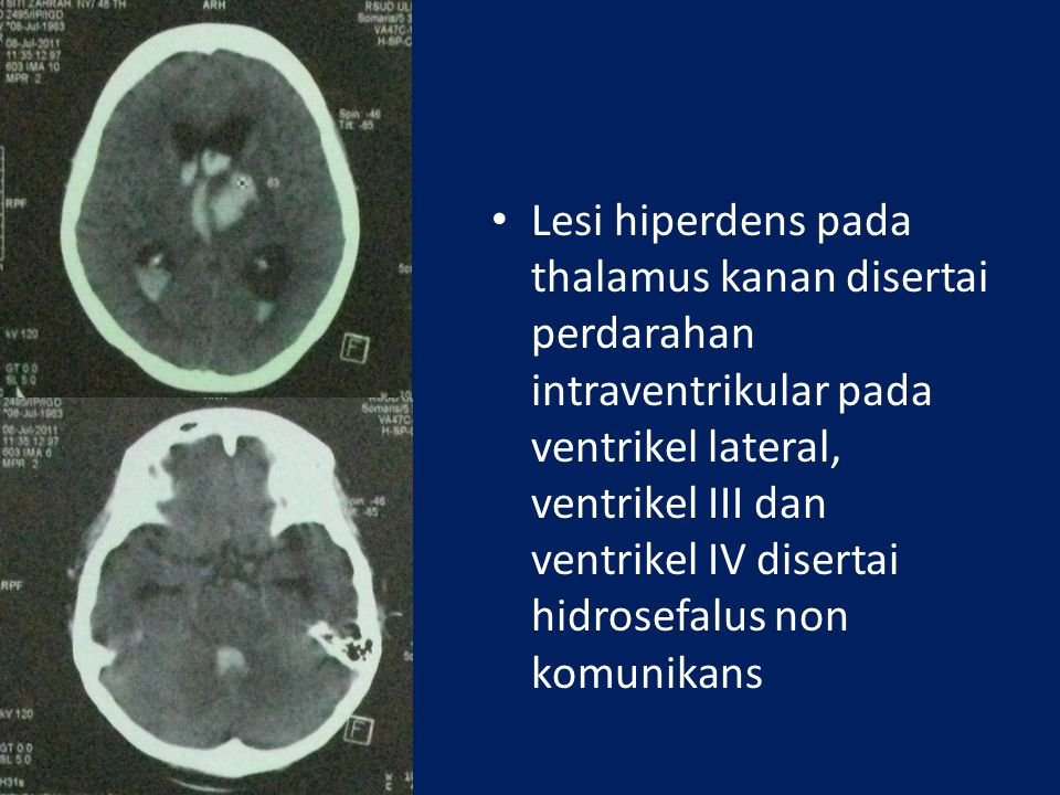 Lesi hiperdens pada thalamus kanan disertai perdarahan intraventrikular pada ventrikel lateral, ventrikel III dan ventrikel IV disertai hidrosefalus non komunikans