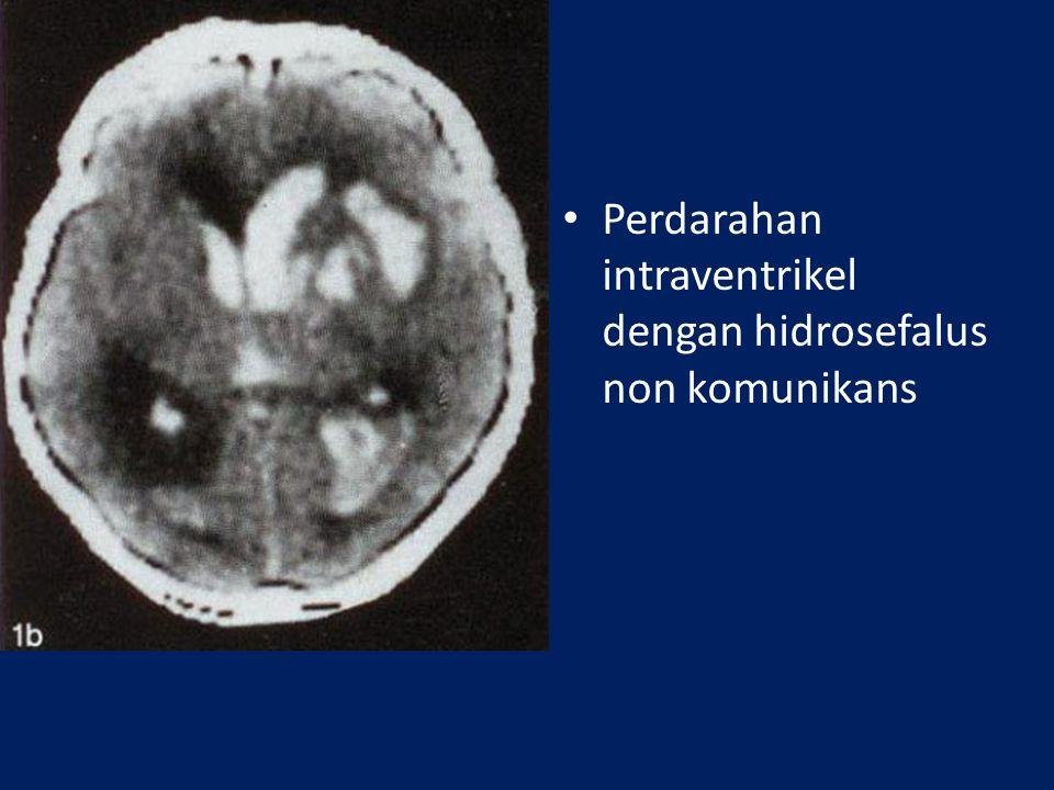 Perdarahan intraventrikel dengan hidrosefalus non komunikans