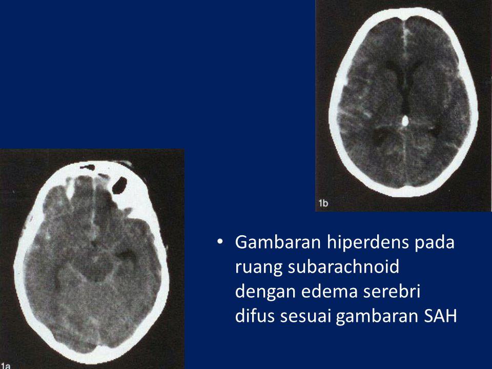 Perdarahan subarachnoid akibat ruptur aneurisma pada arteri communica- ting anterior