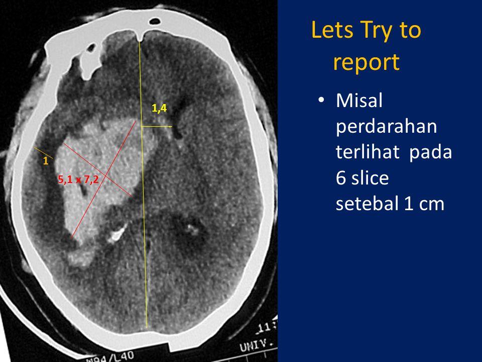 Lets Try to report Misal perdarahan terlihat pada 6 slice setebal 1 cm 5,1 x 7,2 1,4 1