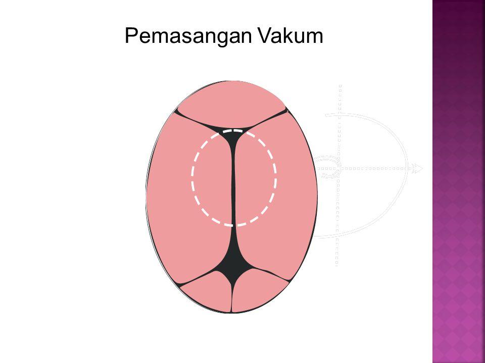  Luka kandung kemih  Kemungkinan ruptur uteri Prognosis : = Dulu angka morbiditas dan mortalitas untuk ibu dan janin tinggi.