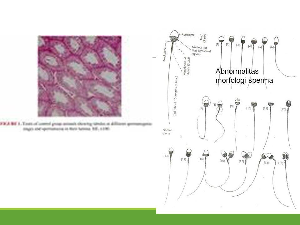 Abnormalitas morfologi sperma