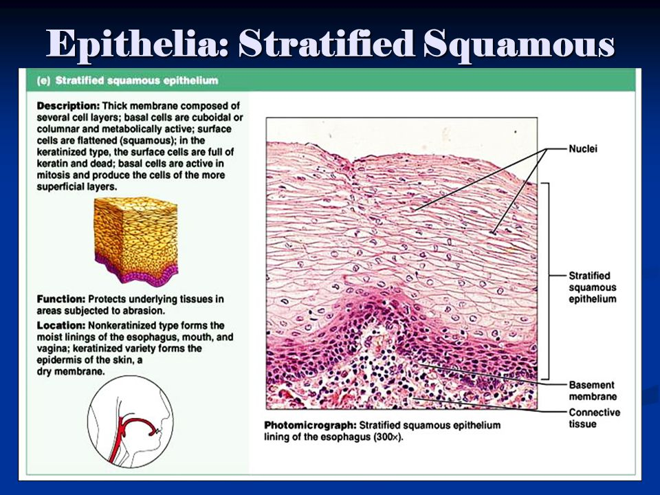 Epithelia: Stratified Squamous Figure 4.2e