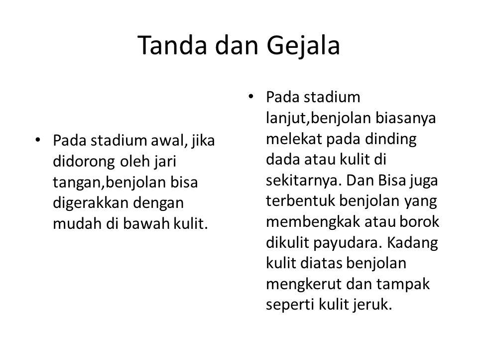 Tanda dan Gejala Pada stadium awal, jika didorong oleh jari tangan,benjolan bisa digerakkan dengan mudah di bawah kulit. Pada stadium lanjut,benjolan