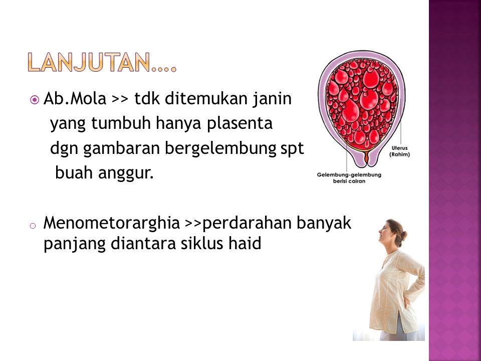  Ab.Mola >> tdk ditemukan janin yang tumbuh hanya plasenta dgn gambaran bergelembung spt buah anggur.