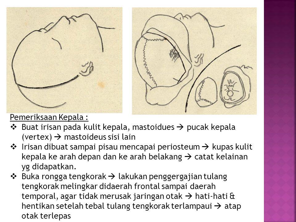 Pemeriksaan Kepala :  Buat irisan pada kulit kepala, mastoidues  pucak kepala (vertex)  mastoideus sisi lain  Irisan dibuat sampai pisau mencapai