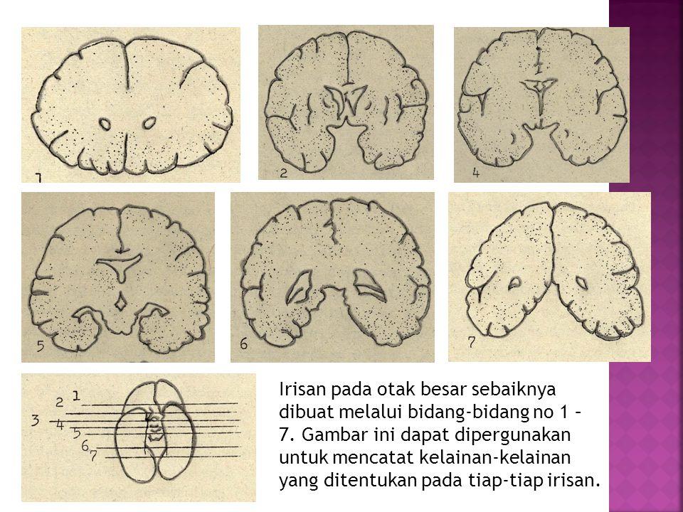 Irisan pada otak besar sebaiknya dibuat melalui bidang-bidang no 1 – 7. Gambar ini dapat dipergunakan untuk mencatat kelainan-kelainan yang ditentukan