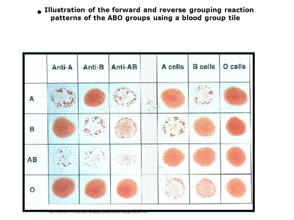 Illustration of the forward and reverse grouping reaction patterns of the ABO groups using a blood group tile http://www.bh.rmit.edu.au/mls/subjects/abo/resources/genetics1.htm