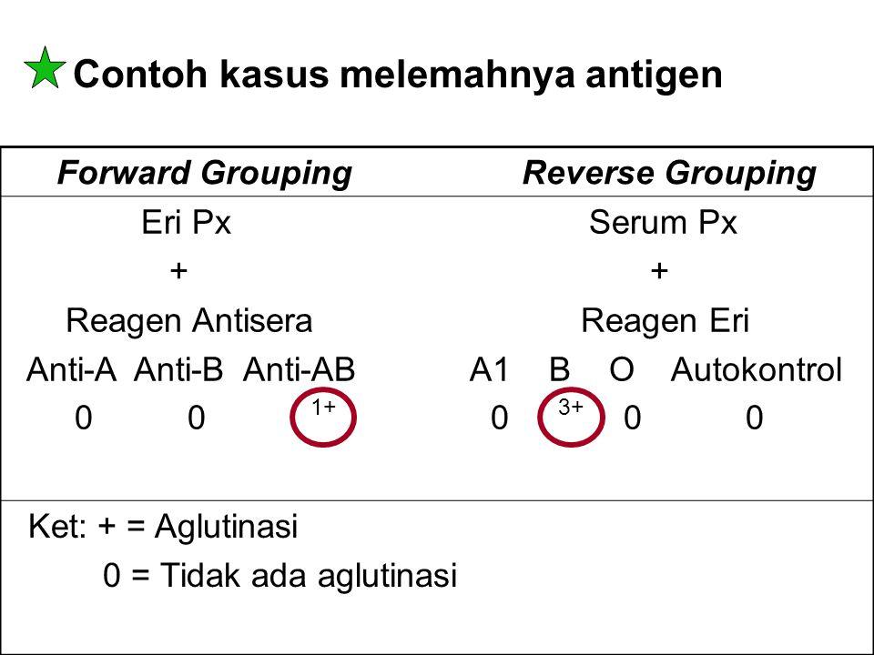 Contoh kasus melemahnya antigen Forward Grouping Reverse Grouping Eri Px Serum Px + + Reagen Antisera Reagen Eri Anti-A Anti-B Anti-AB A1 B O Autokont