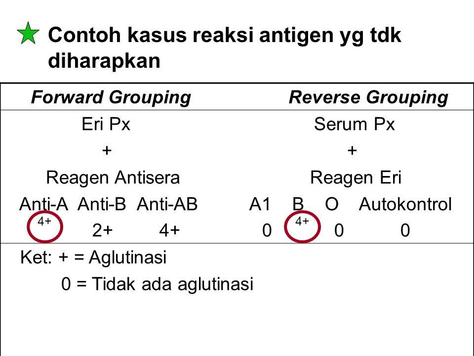 Contoh kasus reaksi antigen yg tdk diharapkan Forward Grouping Reverse Grouping Eri Px Serum Px + + Reagen Antisera Reagen Eri Anti-A Anti-B Anti-AB A