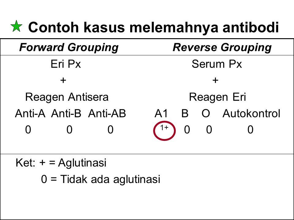 Contoh kasus melemahnya antibodi Forward Grouping Reverse Grouping Eri Px Serum Px + + Reagen Antisera Reagen Eri Anti-A Anti-B Anti-AB A1 B O Autokon