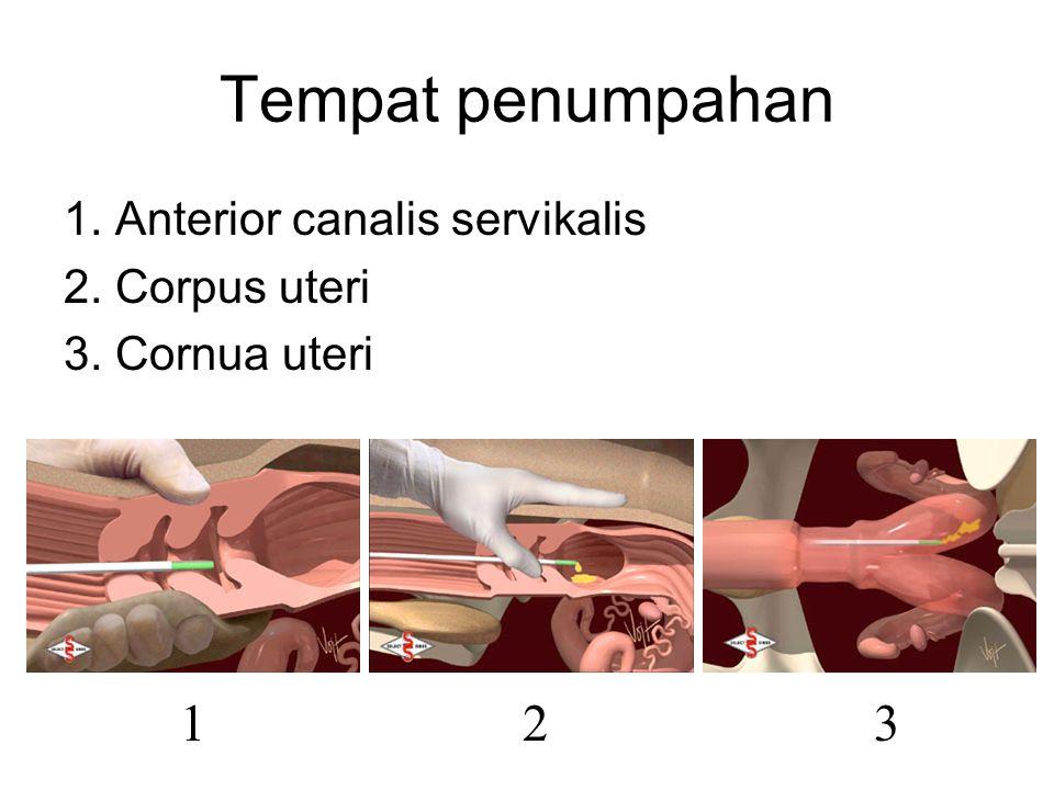 Tempat penumpahan 1. Anterior canalis servikalis 2. Corpus uteri 3. Cornua uteri 132