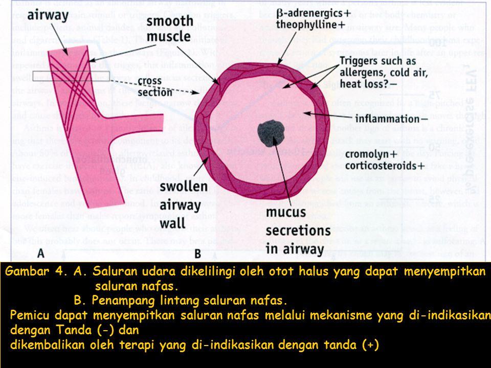 Gambar 4.A. Saluran udara dikelilingi oleh otot halus yang dapat menyempitkan saluran nafas.