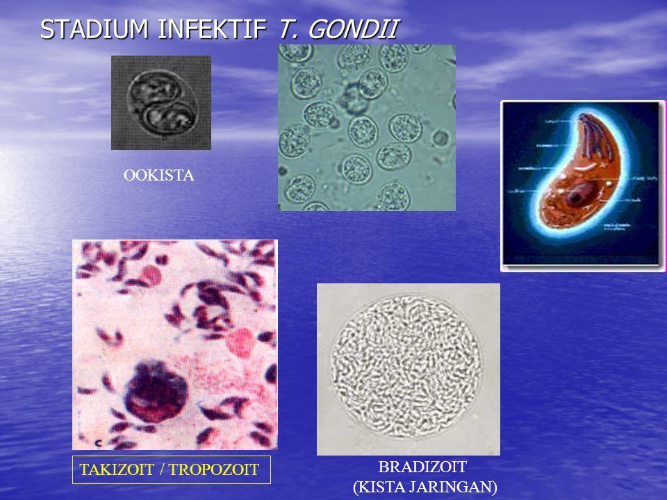 OOKISTA BRADIZOIT (KISTA JARINGAN) TAKIZOIT / TROPOZOIT STADIUM INFEKTIF T. GONDII