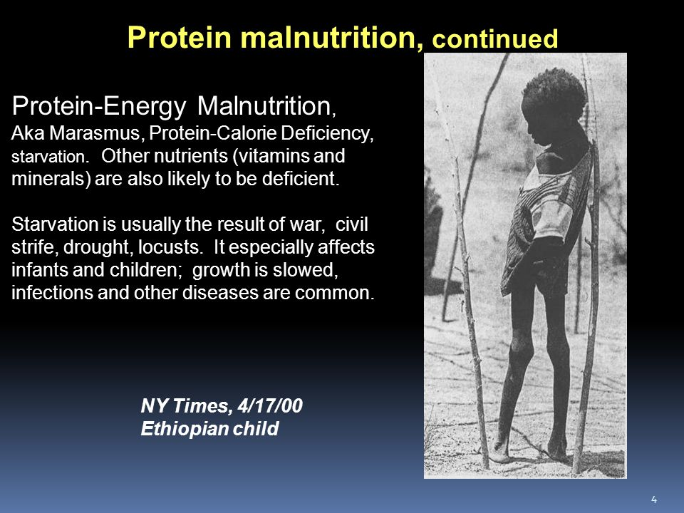 5 Such extreme forms of malnutrition are rare in US, but protein deficiency can occur among: Pregnant and lactating women, unless they increase their protein intake.