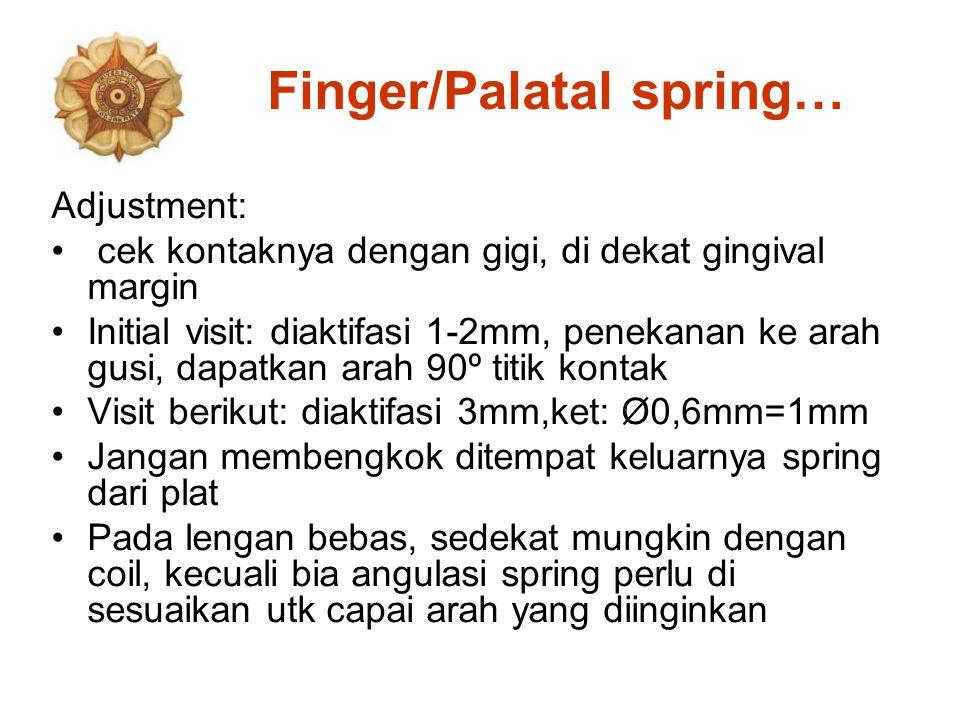 Finger/Palatal spring… Adjustment: cek kontaknya dengan gigi, di dekat gingival margin Initial visit: diaktifasi 1-2mm, penekanan ke arah gusi, dapatk