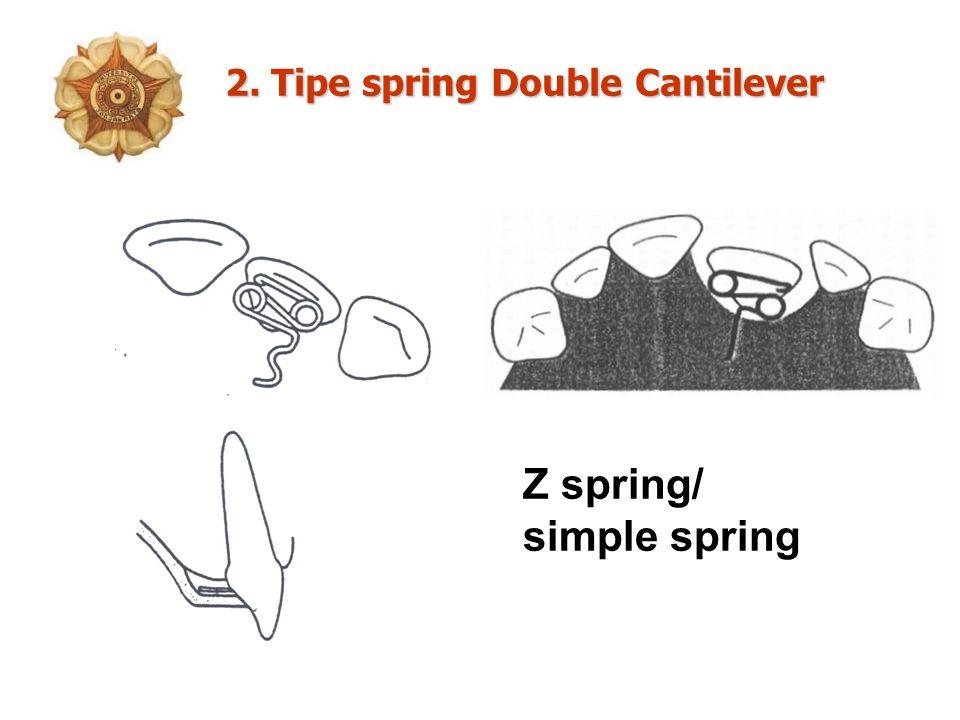 Z spring/ simple spring 2. Tipe springDouble Cantilever 2. Tipe spring Double Cantilever