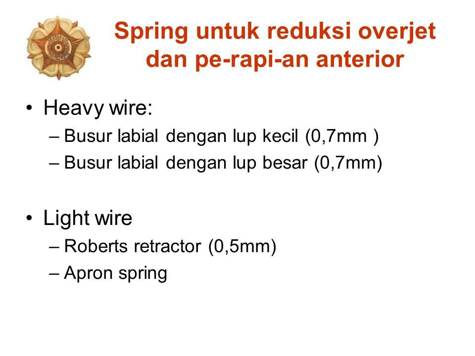 Spring untuk reduksi overjet dan pe-rapi-an anterior Heavy wire: –Busur labial dengan lup kecil (0,7mm ) –Busur labial dengan lup besar (0,7mm) Light