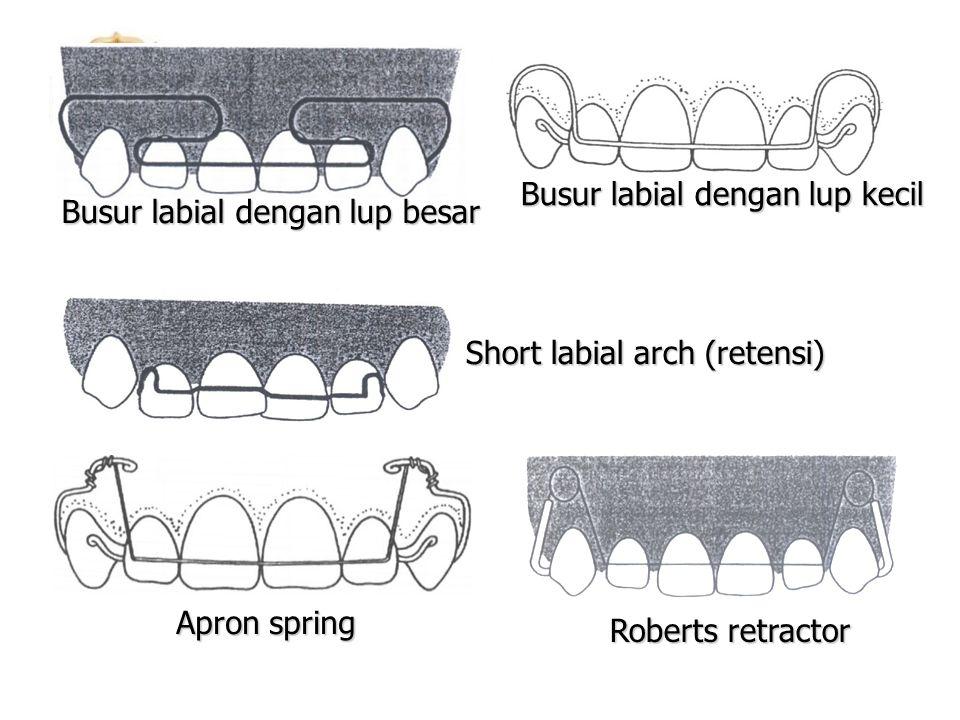 Roberts retractor Apron spring Busur labial dengan lup besar Busur labial dengan lup kecil Short labial arch (retensi)