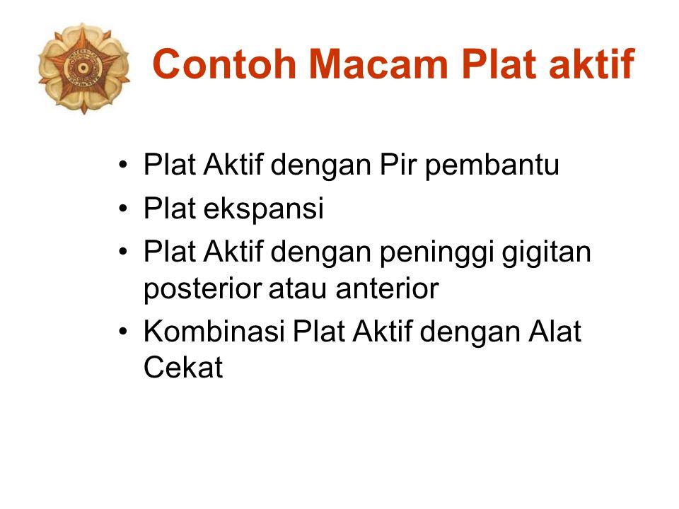 Contoh Macam Plat aktif Plat Aktif dengan Pir pembantu Plat ekspansi Plat Aktif dengan peninggi gigitan posterior atau anterior Kombinasi Plat Aktif d