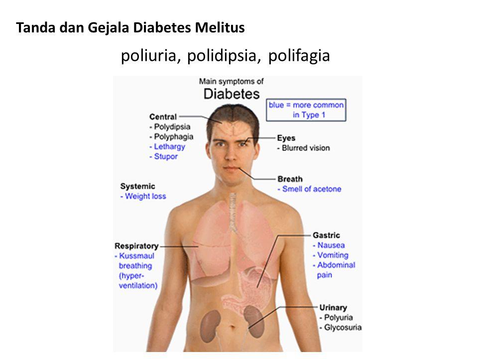 DM TIPE I 1.Mudah terjadi ketoasidosis 2.Pengobatan harus dengan insulin 3.Onset akut 4.Biasanya kurus 5.Biasanya terjadi pada umur yang masih muda 6.Berhubungan dengan HLA-DR3 dan DR4 7.Didapatkan antibodi sel islet 8.10%nya ada riwayat diabetes pada keluarga 9.30-50 % kembar identik terkena DM TIPE II 1.Sukar terjadi ketoasidosis 2.Pengobatan tidak harus dengan insulin 3.Onset lambat 4.Gemuk atau tidak gemuk 5.Biasanya terjadi pada umur > 45 tahun 6.Tidak berhubungan dengan HLA 7.Tidak ada antibodi sel islet 8.30%nya ada riwayat diabetes pada keluarga 9.± 100% kembar identik terkena