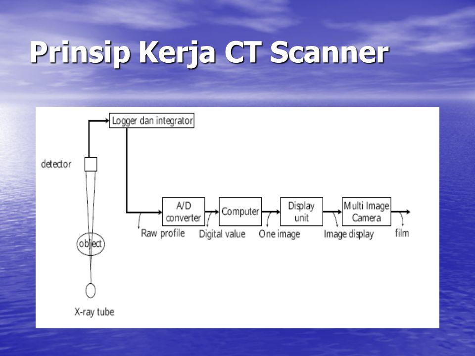 Prinsip Kerja CT Scanner
