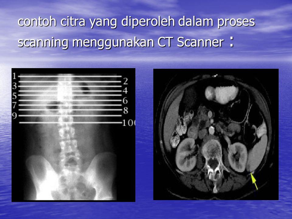 contoh citra yang diperoleh dalam proses scanning menggunakan CT Scanner :