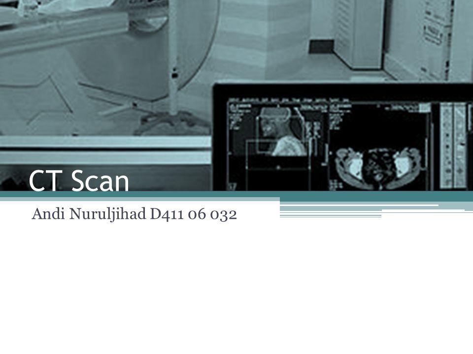 CT Scan CT Scan (Computed Tomography) adalah prosedur radiografi medis yang digunakan untuk mendapatkan gambaran dari berbagai sudut kecil dari tulang atau organ tubuh.