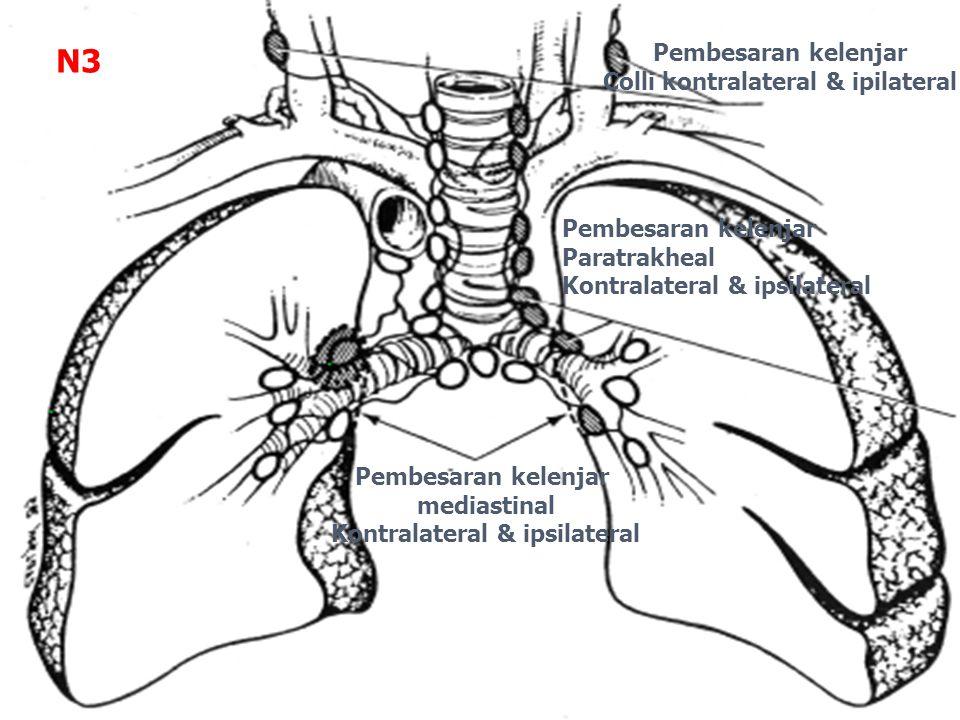 Pembesaran kelenjar mediastinal Kontralateral & ipsilateral Pembesaran kelenjar Colli kontralateral & ipilateral Pembesaran kelenjar Paratrakheal Kontralateral & ipsilateral N3