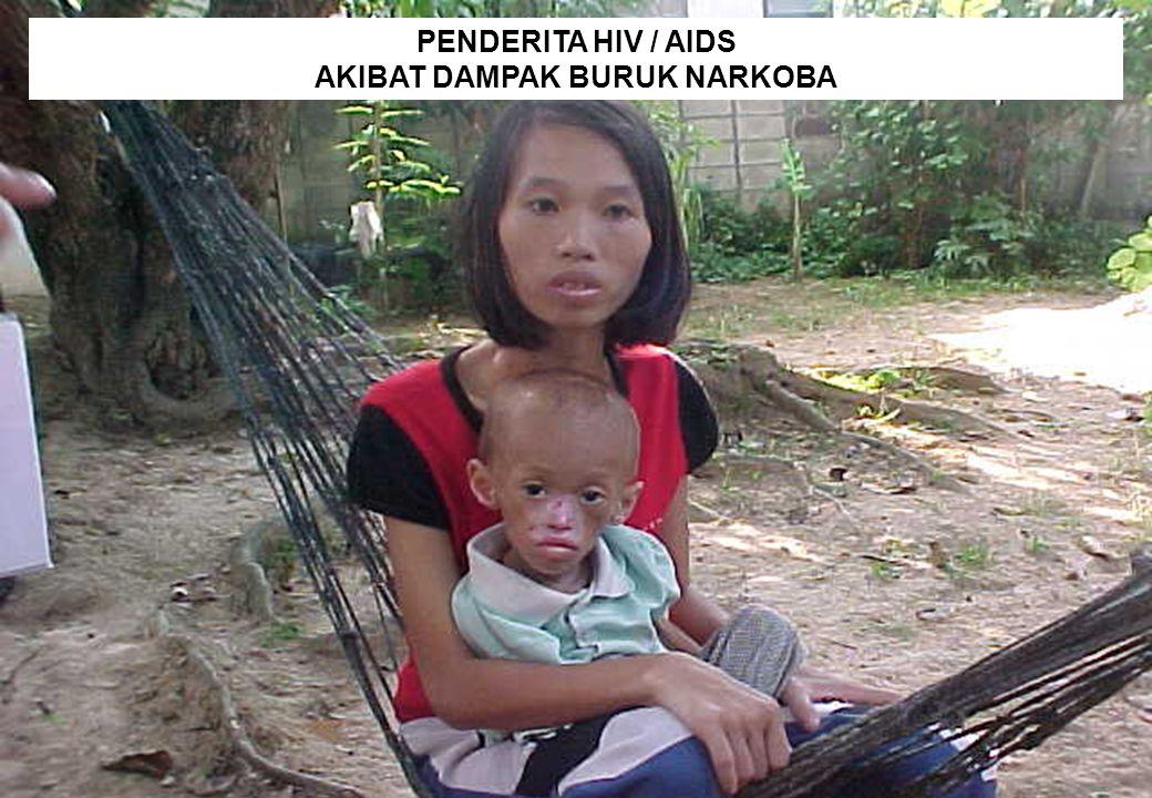 28 PENDERITA HIV / AIDS AKIBAT DAMPAK BURUK NARKOBA