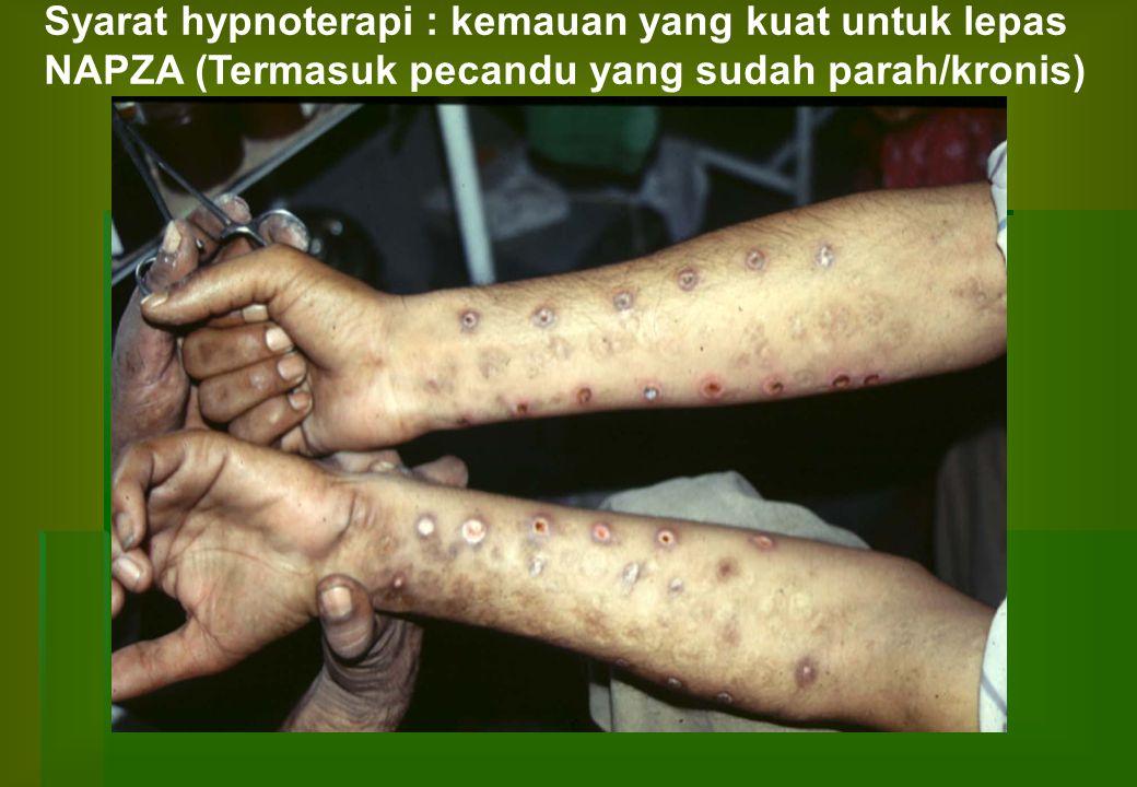Syarat hypnoterapi : kemauan yang kuat untuk lepas NAPZA (Termasuk pecandu yang sudah parah/kronis)
