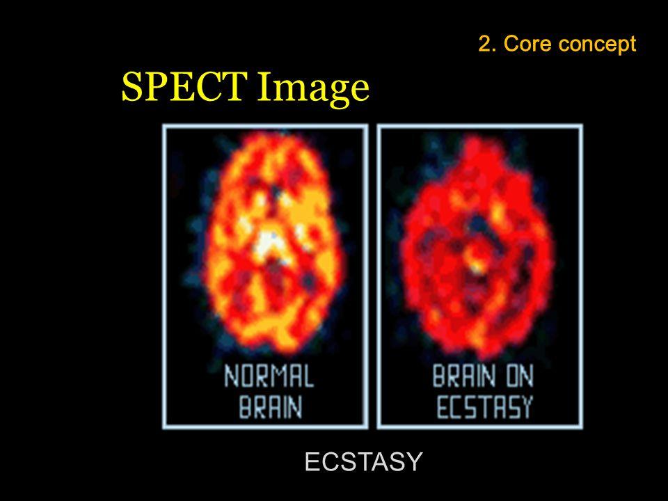 ECSTASY 2. Core concept SPECT Image