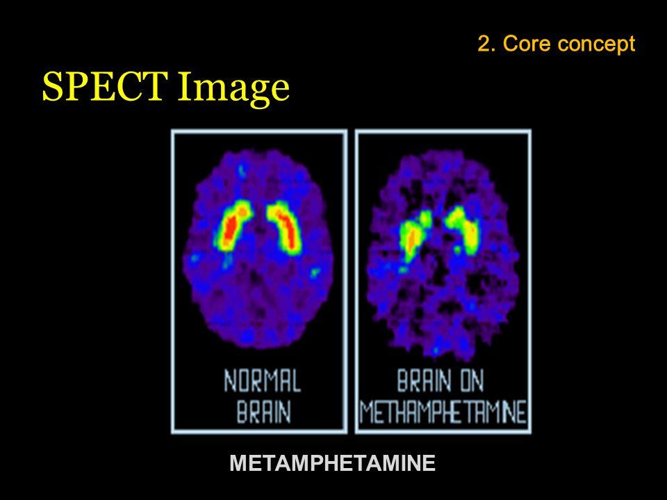 METAMPHETAMINE 2. Core concept SPECT Image