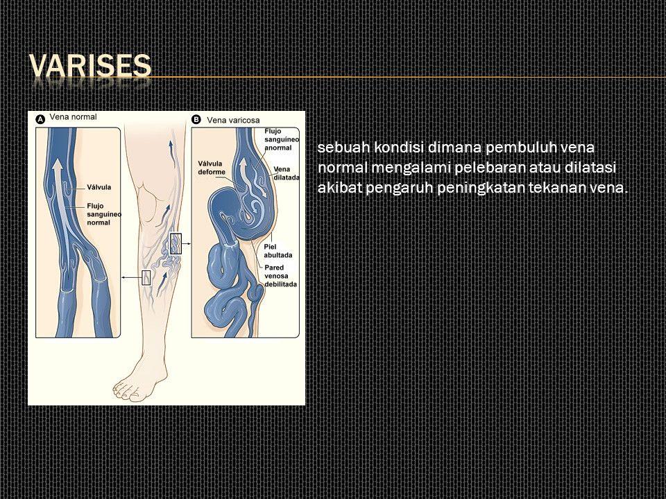 sebuah kondisi dimana pembuluh vena normal mengalami pelebaran atau dilatasi akibat pengaruh peningkatan tekanan vena.