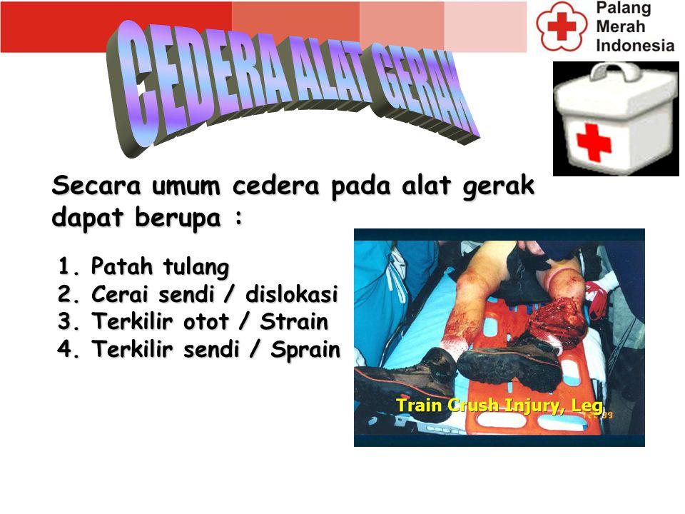 Secara umum cedera pada alat gerak dapat berupa : 1.Patah tulang 2.Cerai sendi / dislokasi 3.Terkilir otot / Strain 4.Terkilir sendi / Sprain