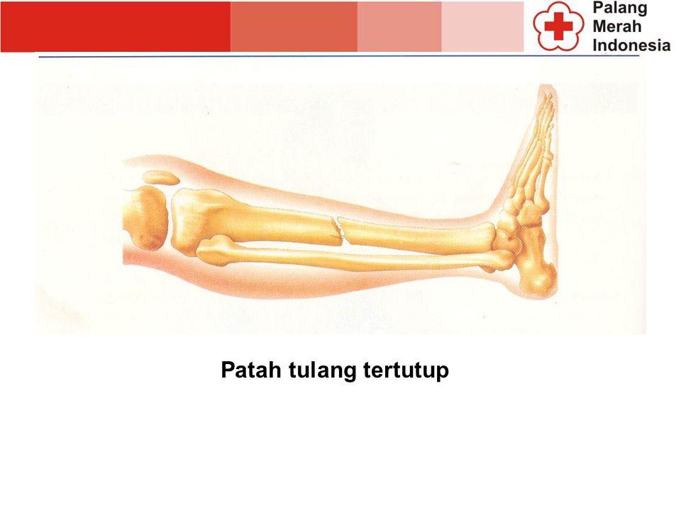Patah tulang tertutup