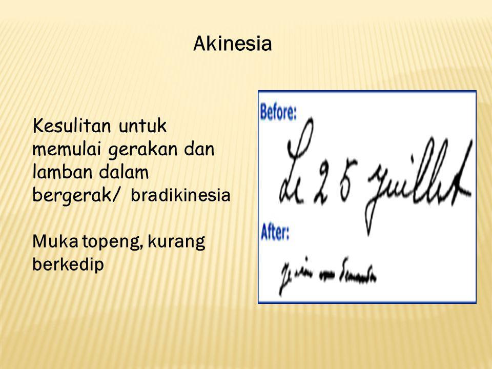 Akinesia Kesulitan untuk memulai gerakan dan lamban dalam bergerak/ bradikinesia Muka topeng, kurang berkedip