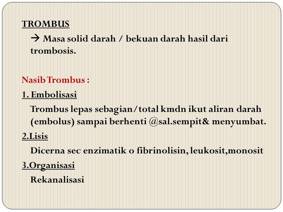 TROMBUS  Masa solid darah / bekuan darah hasil dari trombosis. Nasib Trombus : 1. Embolisasi Trombus lepas sebagian/total kmdn ikut aliran darah (emb