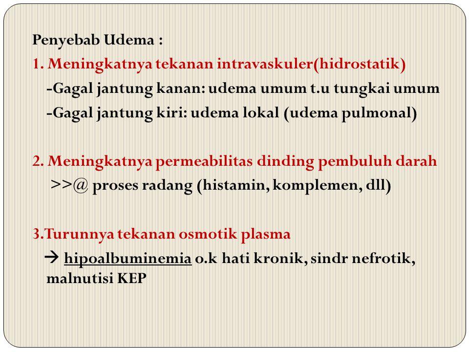 Penyebab Udema : 1. Meningkatnya tekanan intravaskuler(hidrostatik) -Gagal jantung kanan: udema umum t.u tungkai umum -Gagal jantung kiri: udema lokal