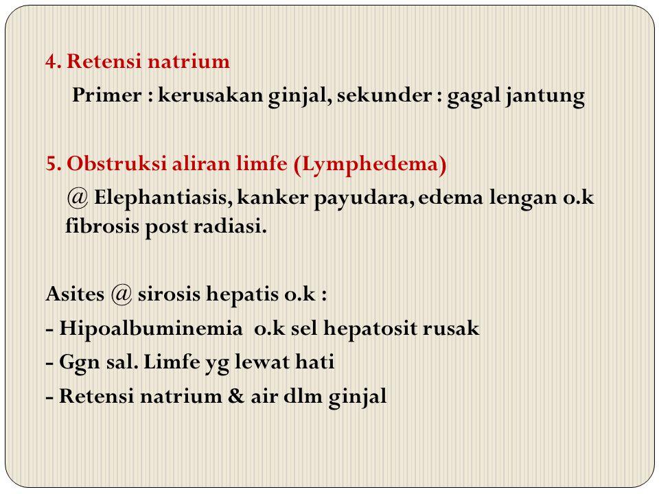 4. Retensi natrium Primer : kerusakan ginjal, sekunder : gagal jantung 5. Obstruksi aliran limfe (Lymphedema) @ Elephantiasis, kanker payudara, edema