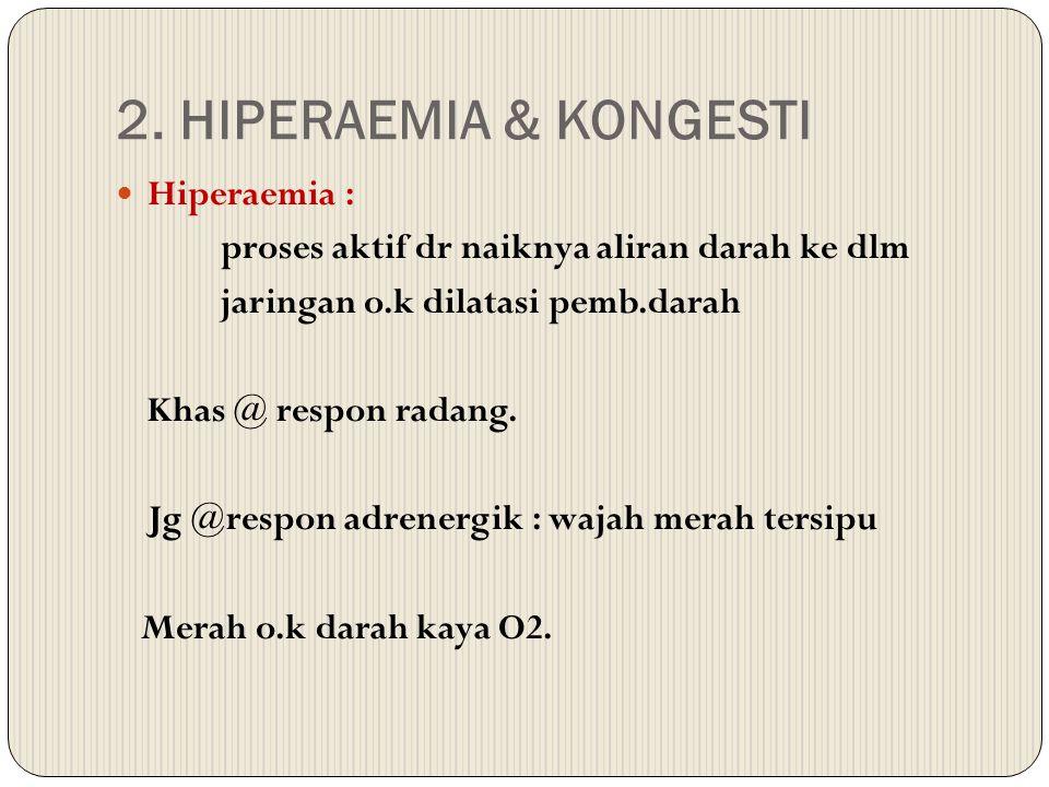 2. HIPERAEMIA & KONGESTI Hiperaemia : proses aktif dr naiknya aliran darah ke dlm jaringan o.k dilatasi pemb.darah Khas @ respon radang. Jg @respon ad